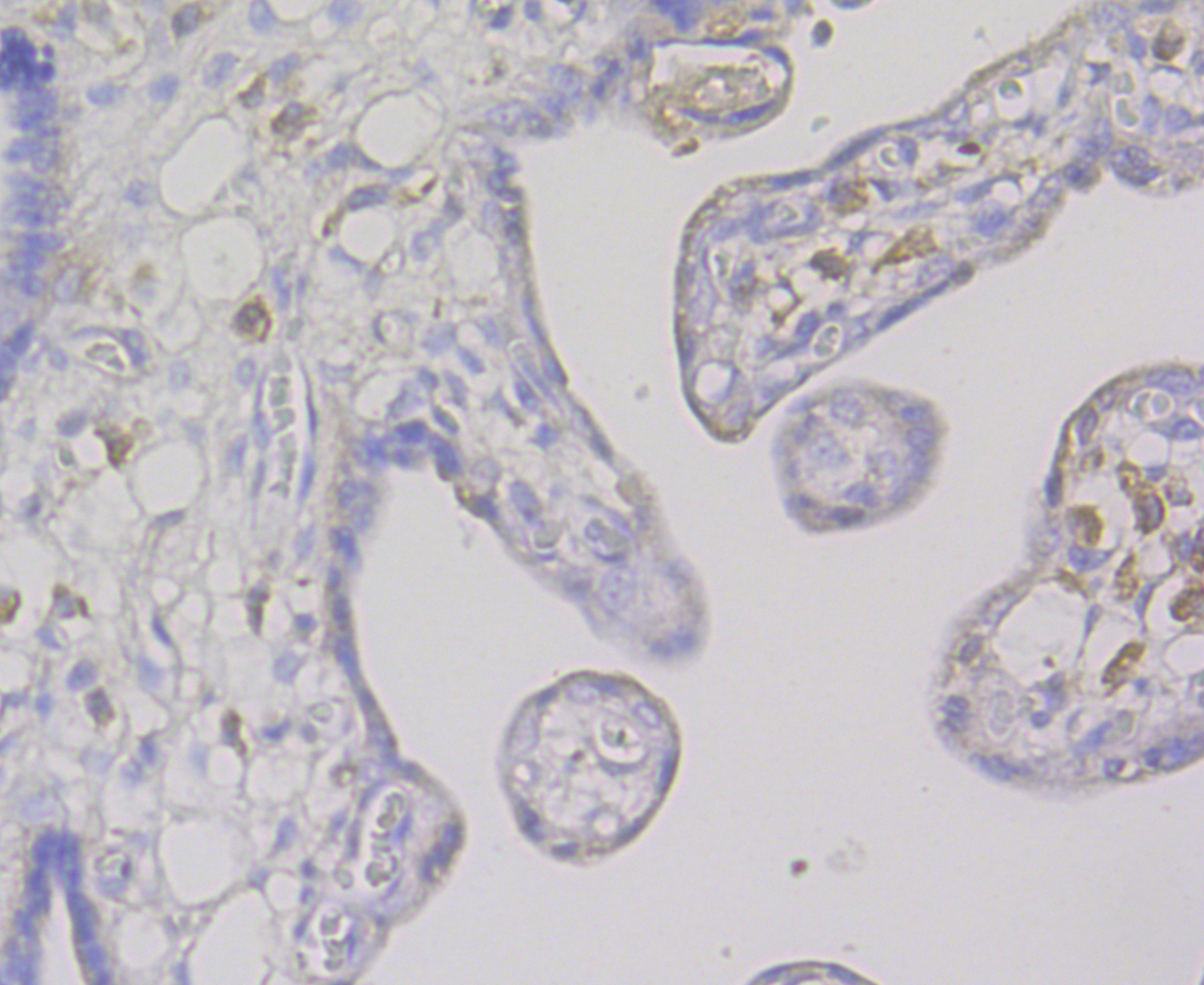 Immunohistochemical analysis of paraffin-embedded human placenta tissue using anti-CD163 antibody. The section was pre-treated using heat mediated antigen retrieval with Tris-EDTA buffer (pH 8.0-8.4) for 20 minutes.The tissues were blocked in 5% BSA for 30 minutes at room temperature, washed with ddH2O and PBS, and then probed with the antibody (ER1804-03) at 1/200 dilution, for 30 minutes at room temperature and detected using an HRP conjugated compact polymer system. DAB was used as the chromogen. Counter stained with hematoxylin and mounted with DPX.