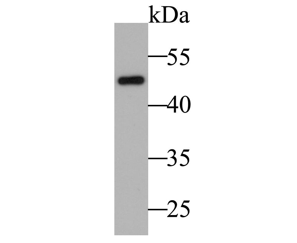 Western blot analysis of Cytokeratin 17 on SiHa cell lysate. Proteins were transferred to a PVDF membrane and blocked with 5% BSA in PBS for 1 hour at room temperature. The primary antibody was used at a 1:2,000 dilution in 5% BSA at room temperature for 2 hours. Goat Anti-Rabbit IgG - HRP Secondary Antibody (HA1001) at 1:5,000 dilution was used for 1 hour at room temperature.