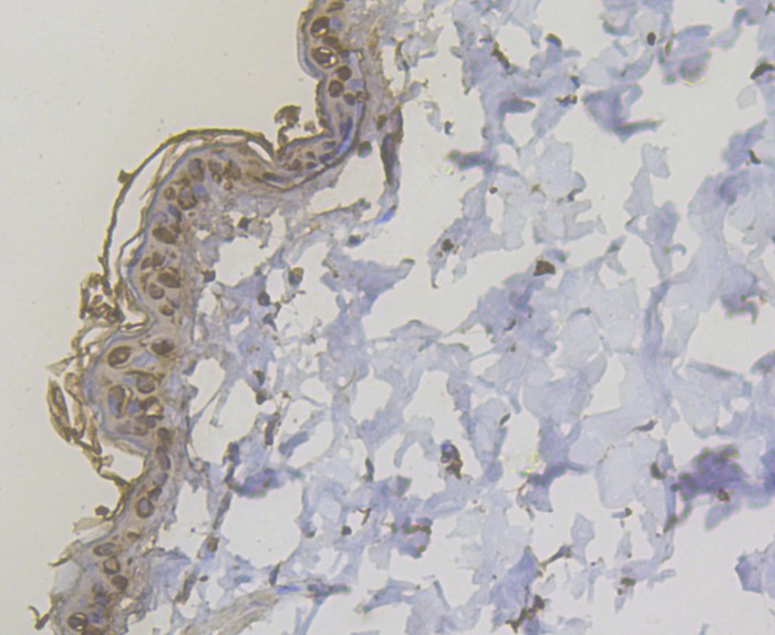 Immunohistochemical analysis of paraffin-embedded rat skin tissue using anti-Cytokeratin 5/6 antibody. The section was pre-treated using heat mediated antigen retrieval with sodium citrate buffer (pH 6.0) for 20 minutes. The tissues were blocked in 5% BSA for 30 minutes at room temperature, washed with ddH2O and PBS, and then probed with the antibody (ER1901-03) at 1/200 dilution, for 30 minutes at room temperature and detected using an HRP conjugated compact polymer system. DAB was used as the chromogen. Counter stained with hematoxylin and mounted with DPX.