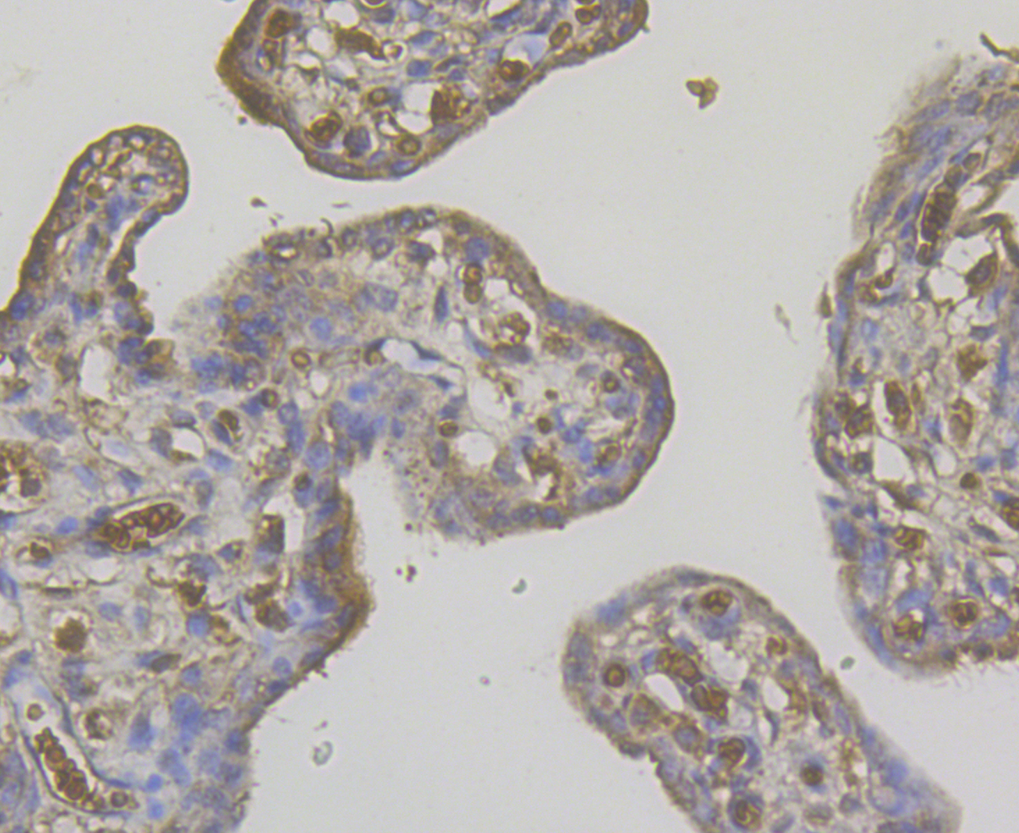 Immunohistochemical analysis of paraffin-embedded human placenta tissue using anti-STIM2 antibody. The section was pre-treated using heat mediated antigen retrieval with Tris-EDTA buffer (pH 8.0-8.4) for 20 minutes.The tissues were blocked in 5% BSA for 30 minutes at room temperature, washed with ddH2O and PBS, and then probed with the antibody (ER1901-04) at 1/200 dilution, for 30 minutes at room temperature and detected using an HRP conjugated compact polymer system. DAB was used as the chromogen. Counter stained with hematoxylin and mounted with DPX.