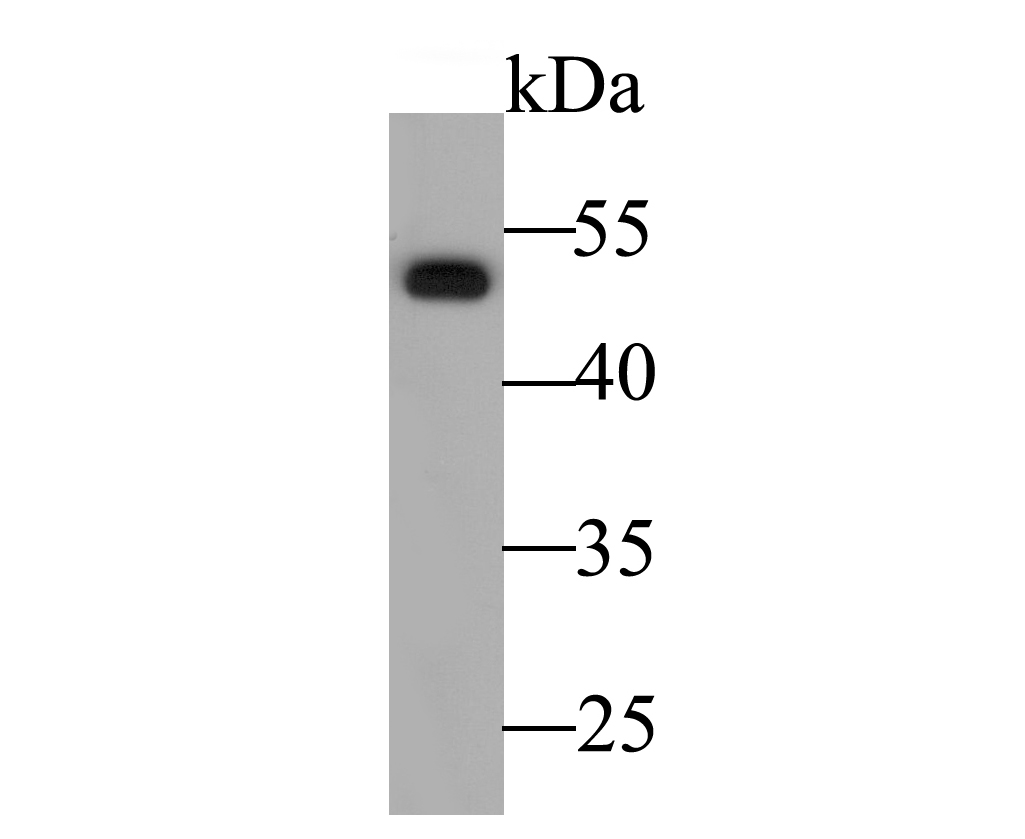 Western blot analysis of Cytokeratin 14 on rat skin tissue lysate. Proteins were transferred to a PVDF membrane and blocked with 5% BSA in PBS for 1 hour at room temperature. The primary antibody was used at a 1:500 dilution in 5% BSA at room temperature for 2 hours. Goat Anti-Rabbit IgG - HRP Secondary Antibody (HA1001) at 1:5,000 dilution was used for 1 hour at room temperature.