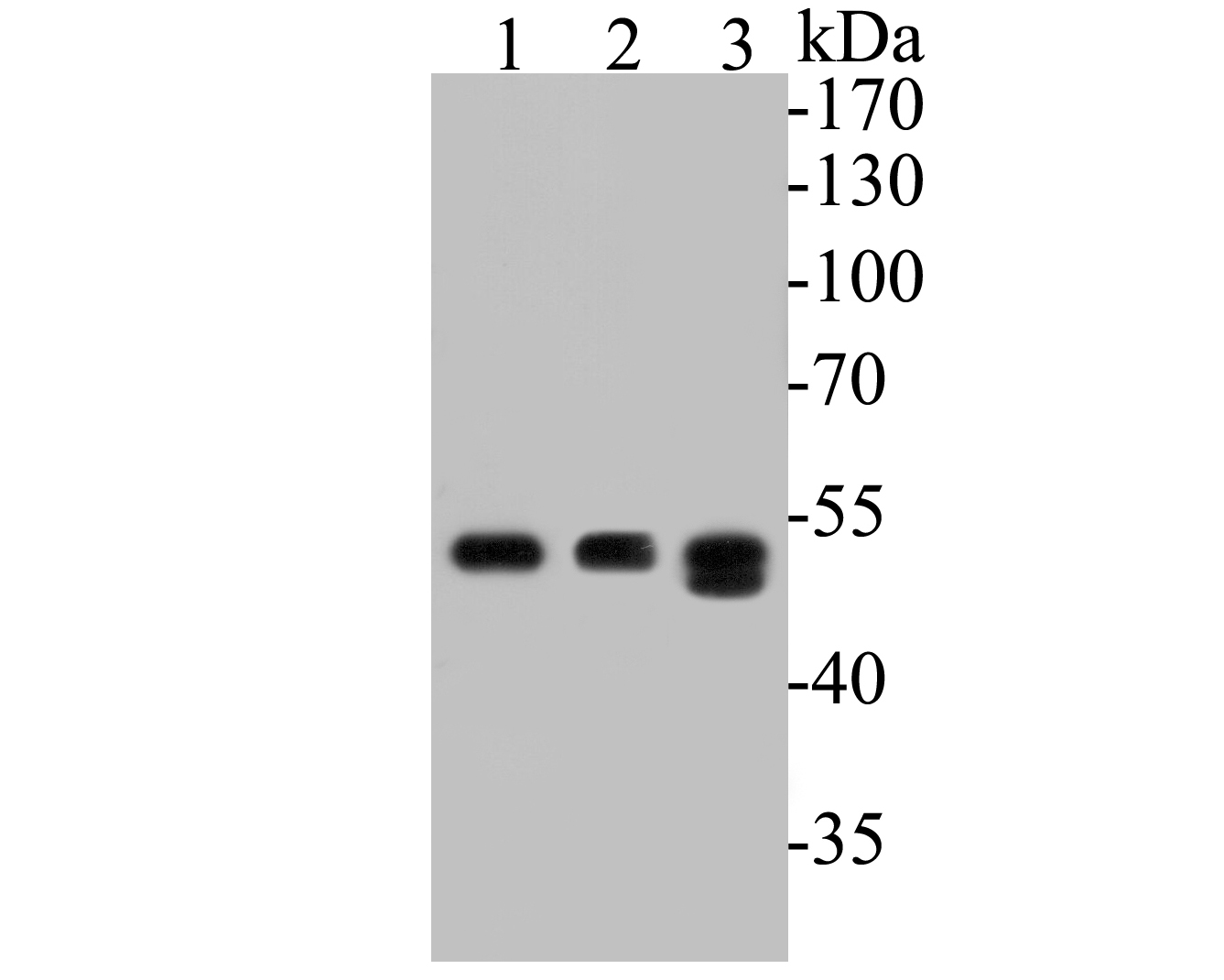 Western blot analysis of FH on different lysates. Proteins were transferred to a PVDF membrane and blocked with 5% BSA in PBS for 1 hour at room temperature. The primary antibody (ER1901-10, 1/500) was used in 5% BSA at room temperature for 2 hours. Goat Anti-Rabbit IgG - HRP Secondary Antibody (HA1001) at 1:5,000 dilution was used for 1 hour at room temperature.<br />  Positive control: <br />  Lane 1: SH-SY5Y cell lysate<br />  Lane 2: Mouse colon tissue lysate<br />  Lane 3: Rat colon tissue lysate