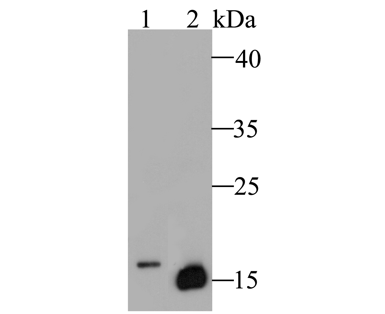Western blot analysis of Myoglobin on different lysates. Proteins were transferred to a PVDF membrane and blocked with 5% BSA in PBS for 1 hour at room temperature. The primary antibody (ER1901-17, 1/500) was used in 5% BSA at room temperature for 2 hours. Goat Anti-Rabbit IgG - HRP Secondary Antibody (HA1001) at 1:5,000 dilution was used for 1 hour at room temperature.<br />  Positive control: <br />  Lane 1: MCF-7 cell lysate<br />  Lane 2: Human skeletal muscle tissue lysate
