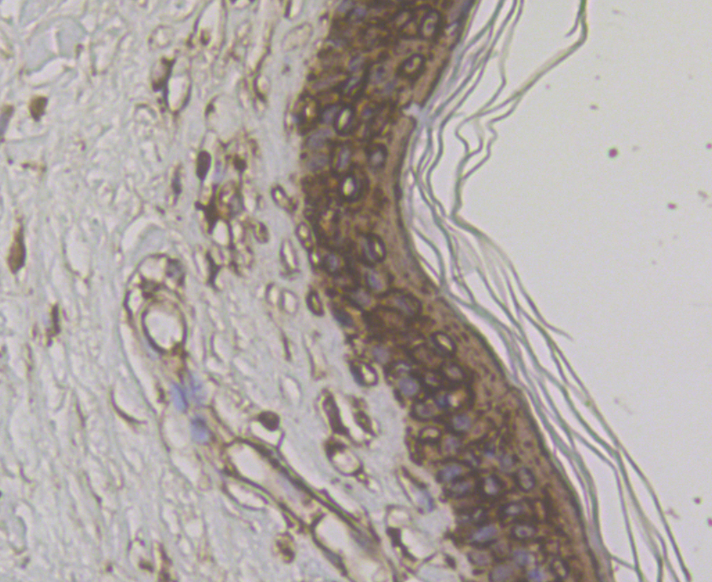Immunohistochemical analysis of paraffin-embedded human skin tissue using anti-Cytokeratin 17 antibody. The section was pre-treated using heat mediated antigen retrieval with Tris-EDTA buffer (pH 8.0-8.4) for 20 minutes.The tissues were blocked in 5% BSA for 30 minutes at room temperature, washed with ddH2O and PBS, and then probed with the antibody (ER1901-18) at 1/200 dilution, for 30 minutes at room temperature and detected using an HRP conjugated compact polymer system. DAB was used as the chromogen. Counter stained with hematoxylin and mounted with DPX.