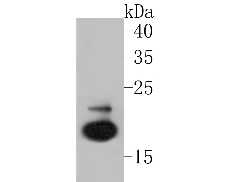 Western blot analysis of FSH beta on SH-SY5Y cell lysate. Proteins were transferred to a PVDF membrane and blocked with 5% BSA in PBS for 1 hour at room temperature. The primary antibody (ER1901-19, 1/500) was used in 5% BSA at room temperature for 2 hours. Goat Anti-Rabbit IgG - HRP Secondary Antibody (HA1001) at 1:5,000 dilution was used for 1 hour at room temperature.
