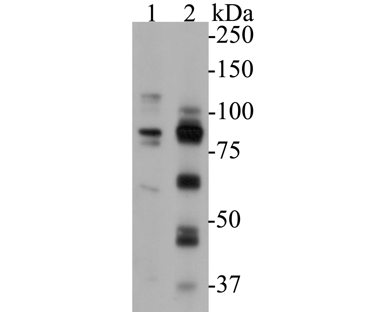 Western blot analysis of FoxP1 on different lysates. Proteins were transferred to a PVDF membrane and blocked with 5% BSA in PBS for 1 hour at room temperature. The primary antibody (ER1901-26, 1/500) was used in 5% BSA at room temperature for 2 hours. Goat Anti-Rabbit IgG - HRP Secondary Antibody (HA1001) at 1:5,000 dilution was used for 1 hour at room temperature.<br /> Positive control: <br /> Lane 1: HepG2 cell lysate<br /> Lane 2: rat spleen tissue lysate