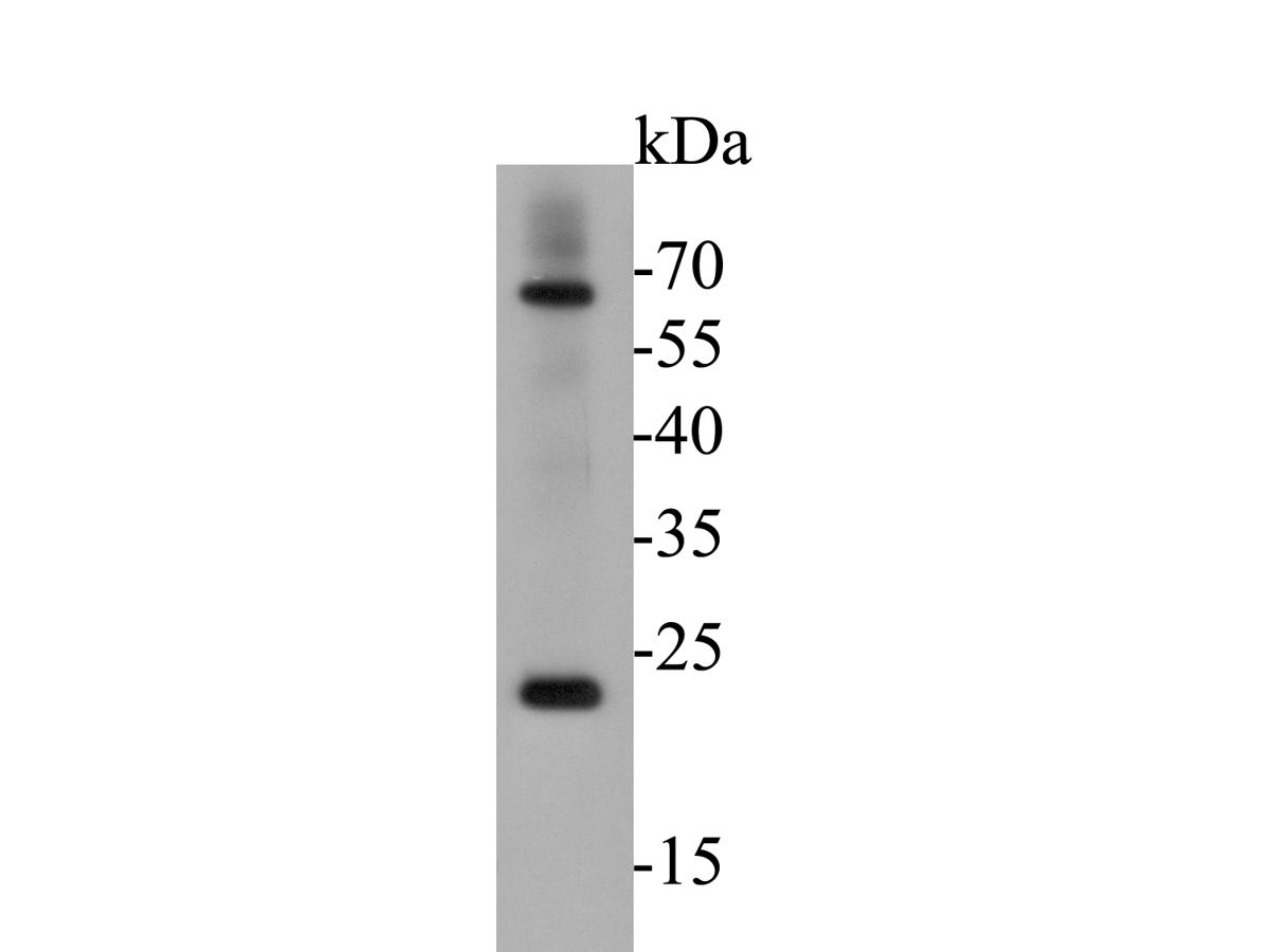 Western blot analysis of CD68 on human lung tissue lysates. Proteins were transferred to a PVDF membrane and blocked with 5% BSA in PBS for 1 hour at room temperature. The primary antibody (ER1901-32, 1/500) was used in 5% BSA at room temperature for 2 hours. Goat Anti-Rabbit IgG - HRP Secondary Antibody (HA1001) at 1:5,000 dilution was used for 1 hour at room temperature.