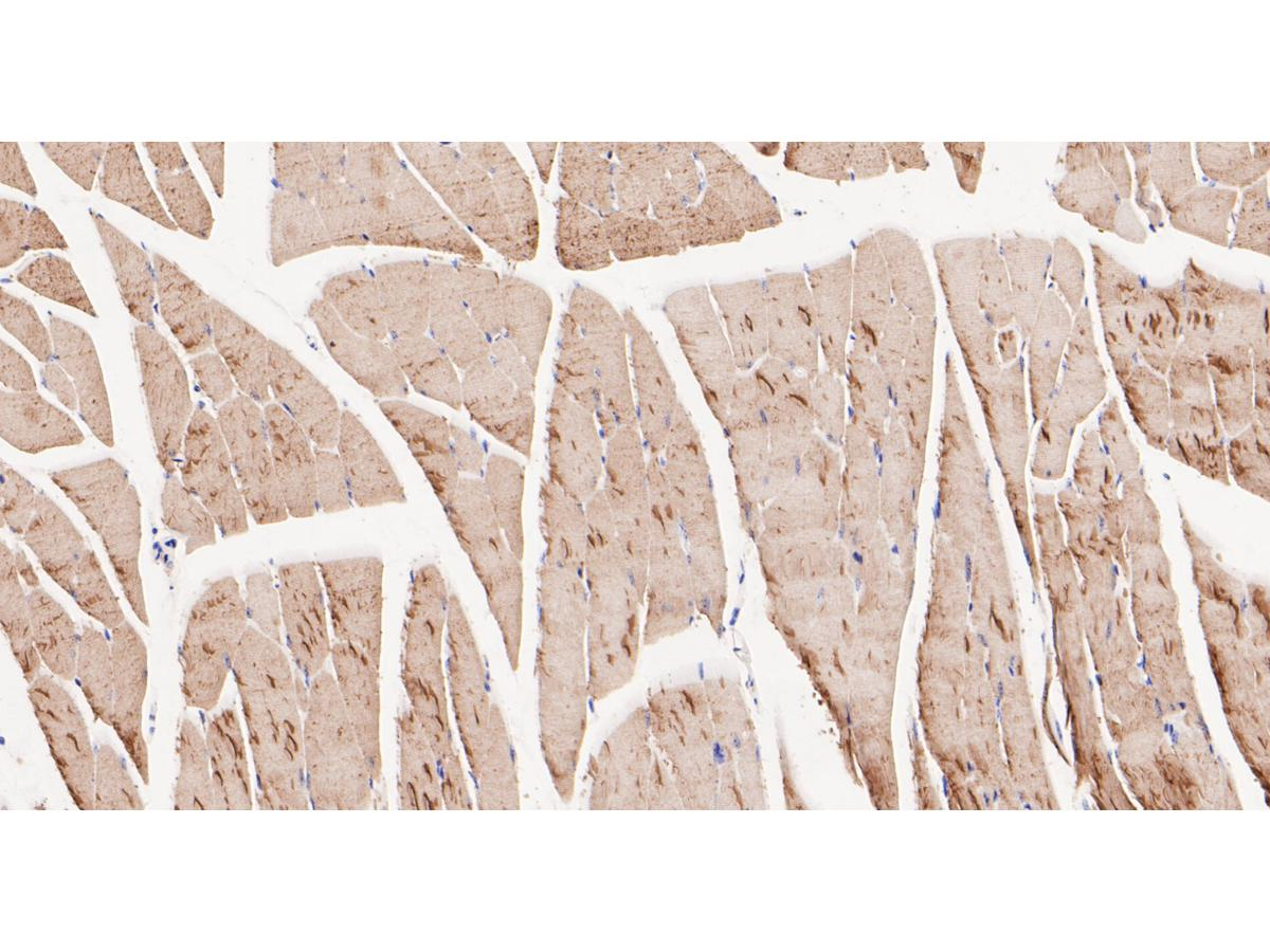 Immunohistochemical analysis of paraffin-embedded mouse skeletal muscle tissue using anti-BIN1 antibody. The section was pre-treated using heat mediated antigen retrieval with Tris-EDTA buffer (pH 8.0-8.4) for 20 minutes.The tissues were blocked in 5% BSA for 30 minutes at room temperature, washed with ddH2O and PBS, and then probed with the primary antibody (ER1901-39, 1/200) for 30 minutes at room temperature. The detection was performed using an HRP conjugated compact polymer system. DAB was used as the chromogen. Tissues were counterstained with hematoxylin and mounted with DPX.