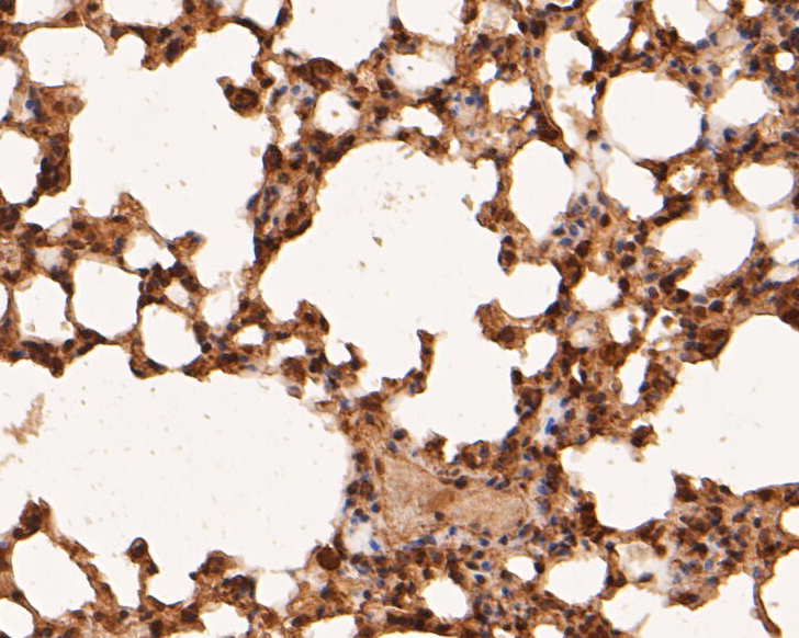 Immunohistochemical analysis of paraffin-embedded mouse lung tissue using anti-RBPMS antibody. The section was pre-treated using heat mediated antigen retrieval with sodium citrate buffer (pH 6.0) for 20 minutes. The tissues were blocked in 5% BSA for 30 minutes at room temperature, washed with ddH2O and PBS, and then probed with the primary antibody (ER1901-43, 1/50) for 30 minutes at room temperature. The detection was performed using an HRP conjugated compact polymer system. DAB was used as the chromogen. Tissues were counterstained with hematoxylin and mounted with DPX.