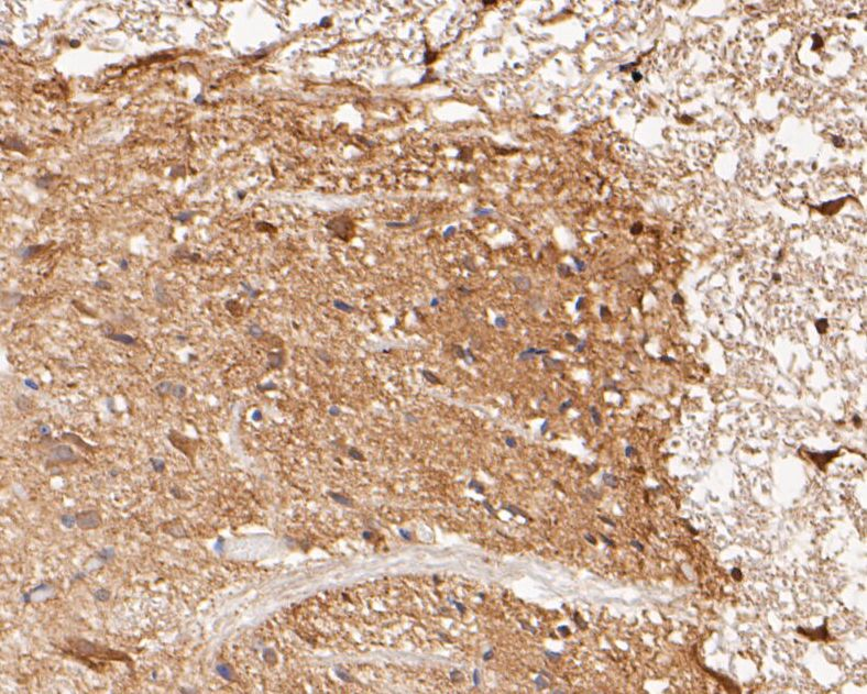 Immunohistochemical analysis of paraffin-embedded rat spinal cord tissue using anti-KCNK18 antibody. The section was pre-treated using heat mediated antigen retrieval with Tris-EDTA buffer (pH 8.0-8.4) for 20 minutes.The tissues were blocked in 5% BSA for 30 minutes at room temperature, washed with ddH2O and PBS, and then probed with the primary antibody (ER1901-46, 1/50) for 30 minutes at room temperature. The detection was performed using an HRP conjugated compact polymer system. DAB was used as the chromogen. Tissues were counterstained with hematoxylin and mounted with DPX.