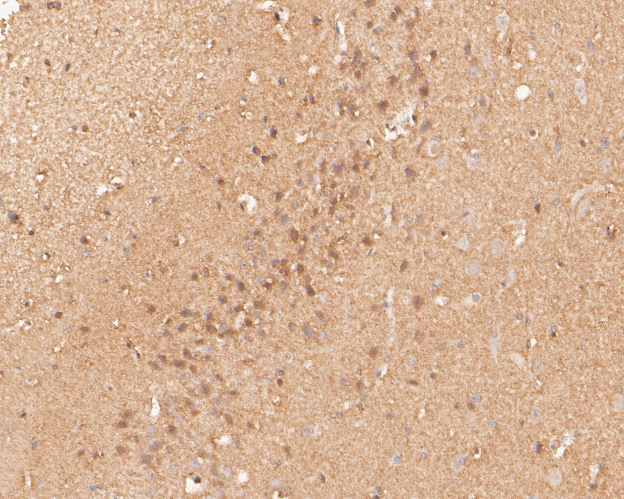 Immunohistochemical analysis of paraffin-embedded rat brain tissue using anti-P2X6 antibody. The section was pre-treated using heat mediated antigen retrieval with Tris-EDTA buffer (pH 8.0-8.4) for 20 minutes.The tissues were blocked in 5% BSA for 30 minutes at room temperature, washed with ddH2O and PBS, and then probed with the primary antibody (ER1901-49, 1/50) for 30 minutes at room temperature. The detection was performed using an HRP conjugated compact polymer system. DAB was used as the chromogen. Tissues were counterstained with hematoxylin and mounted with DPX.