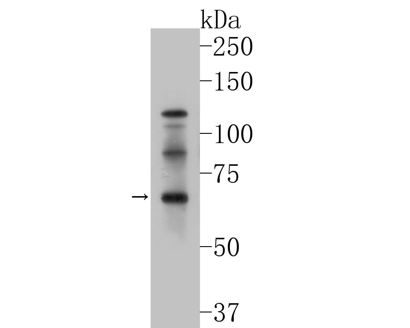 Western blot analysis of GABRA4 on SH-SY5Y cell lysates. Proteins were transferred to a PVDF membrane and blocked with 5% BSA in PBS for 1 hour at room temperature. The primary antibody (ER1901-60, 1/500) was used in 5% BSA at room temperature for 2 hours. Goat Anti-Rabbit IgG - HRP Secondary Antibody (HA1001) at 1:5,000 dilution was used for 1 hour at room temperature.