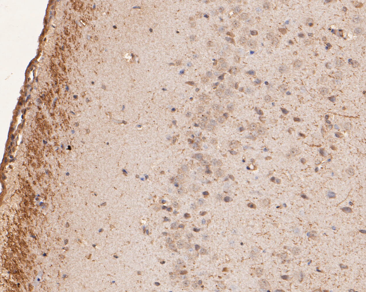 Immunohistochemical analysis of paraffin-embedded rat brain tissue using anti-GABRA4 antibody. The section was pre-treated using heat mediated antigen retrieval with Tris-EDTA buffer (pH 8.0-8.4) for 20 minutes.The tissues were blocked in 5% BSA for 30 minutes at room temperature, washed with ddH2O and PBS, and then probed with the primary antibody (ER1901-60, 1/50) for 30 minutes at room temperature. The detection was performed using an HRP conjugated compact polymer system. DAB was used as the chromogen. Tissues were counterstained with hematoxylin and mounted with DPX.