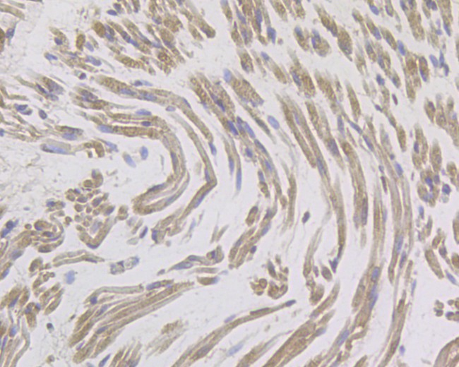 Immunohistochemical analysis of paraffin-embedded human skeletal muscle tissue using anti-IL8 antibody. The section was pre-treated using heat mediated antigen retrieval with Tris-EDTA buffer (pH 8.0-8.4) for 20 minutes.The tissues were blocked in 5% BSA for 30 minutes at room temperature, washed with ddH2O and PBS, and then probed with the primary antibody (ER1901-61, 1/100) for 30 minutes at room temperature. The detection was performed using an HRP conjugated compact polymer system. DAB was used as the chromogen. Tissues were counterstained with hematoxylin and mounted with DPX.