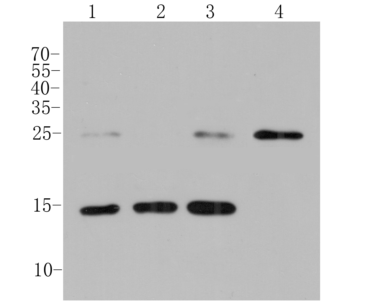 Western blot analysis of MGST1 on different lysates. Proteins were transferred to a PVDF membrane and blocked with 5% BSA in PBS for 1 hour at room temperature. The primary antibody (ER1901-62, 1/1000) was used in 5% BSA at room temperature for 2 hours. Goat Anti-Rabbit IgG - HRP Secondary Antibody (HA1001) at 1:5,000 dilution was used for 1 hour at room temperature.<br />  Positive control: <br />  Lane 1: Siha cell lysate<br />  Lane 2: HepG2 cell lysate<br />  Lane 3: A549 cell lysate<br />  Lane 4: Mouse stomach tissue lysate
