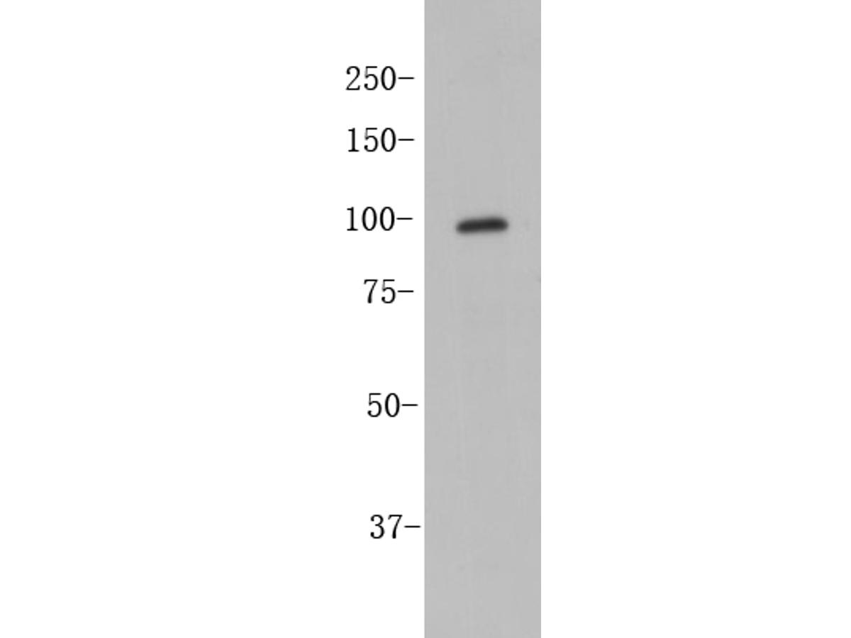 Western blot analysis of CD133 on SW480 cell lysates. Proteins were transferred to a PVDF membrane and blocked with 5% BSA in PBS for 1 hour at room temperature. The primary antibody (ER1901-63, 1/500) was used in 5% BSA at room temperature for 2 hours. Goat Anti-Rabbit IgG - HRP Secondary Antibody (HA1001) at 1:5,000 dilution was used for 1 hour at room temperature.