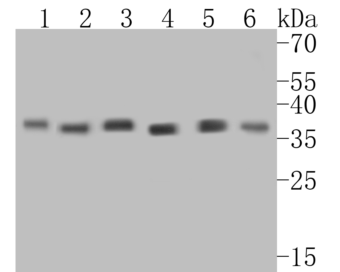 Western blot analysis of GAPDH on different lysates. Proteins were transferred to a PVDF membrane and blocked with 5% BSA in PBS for 1 hour at room temperature. The primary antibody (ER1901-65, 1/500) was used in 5% BSA at room temperature for 2 hours. Goat Anti-Rabbit IgG - HRP Secondary Antibody (HA1001) at 1:5,000 dilution was used for 1 hour at room temperature.<br /> Positive control: <br /> Lane 1: PC-12 cell lysate<br /> Lane 2: Hela cell lysate<br /> Lane 3: Mouse ovary tissue lysate<br /> Lane 4: Human placenta tissue lysate<br /> Lane 5: Rat brain tissue lysate<br /> Lane 6: NCCIT cell lysate