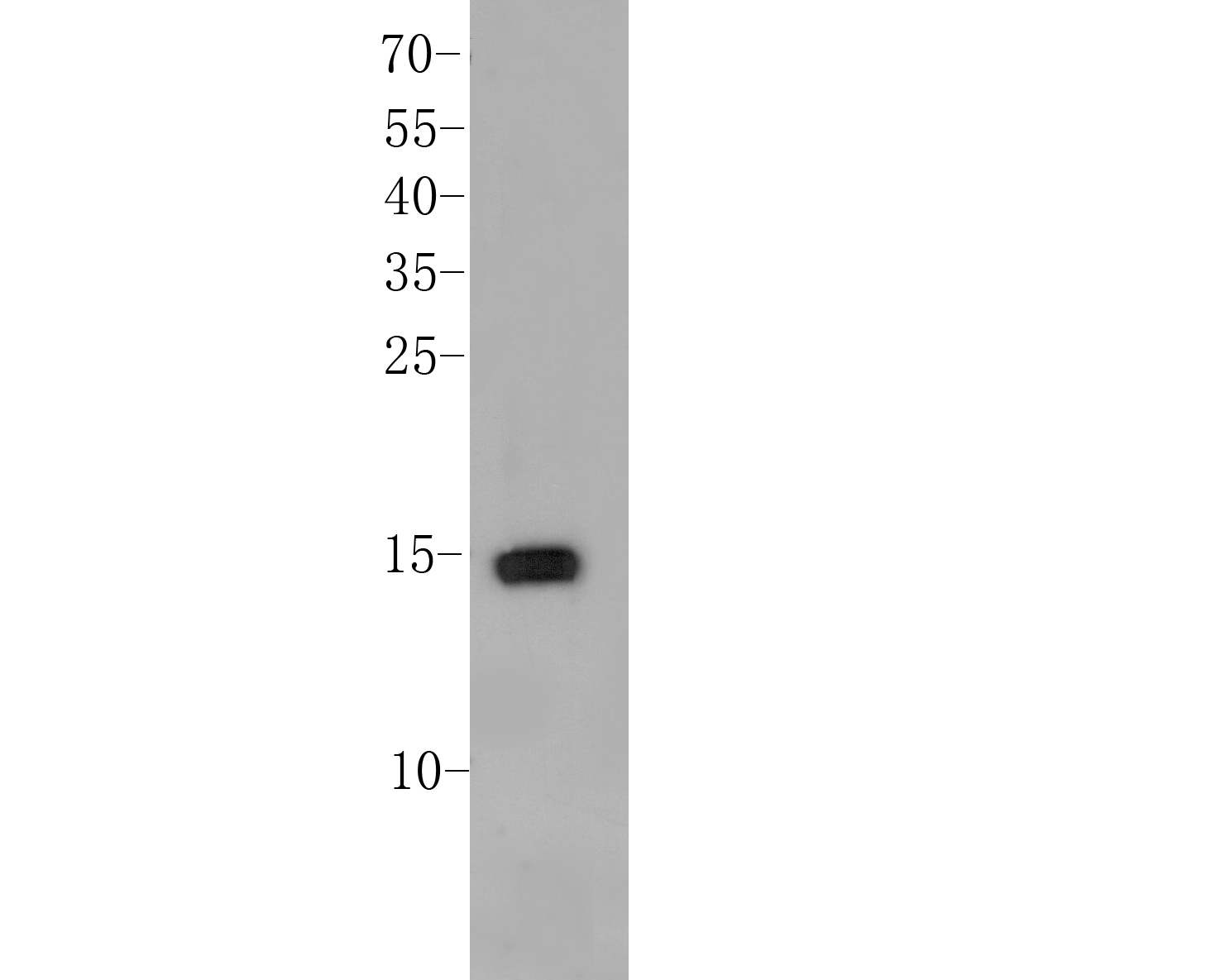 Western blot analysis of Histone H2A.x on MCF-7 cell lysate. Proteins were transferred to a PVDF membrane and blocked with 5% BSA in PBS for 1 hour at room temperature. The primary antibody (ER1901-70, 1/500) was used in 5% BSA at room temperature for 2 hours. Goat Anti-Rabbit IgG - HRP Secondary Antibody (HA1001) at 1:5,000 dilution was used for 1 hour at room temperature.