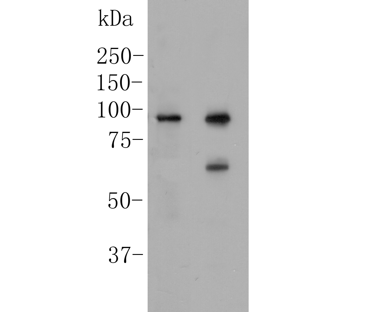 Western blot analysis of delta 1 Catenin/CAS on different lysates. Proteins were transferred to a PVDF membrane and blocked with 5% BSA in PBS for 1 hour at room temperature. The primary antibody (ER1901-80, 1/500) was used in 5% BSA at room temperature for 2 hours. Goat Anti-Rabbit IgG - HRP Secondary Antibody (HA1001) at 1:5,000 dilution was used for 1 hour at room temperature.<br /> Positive control: <br /> Lane 1: Siha cell lysate<br /> Lane 2: A431 cell lysate