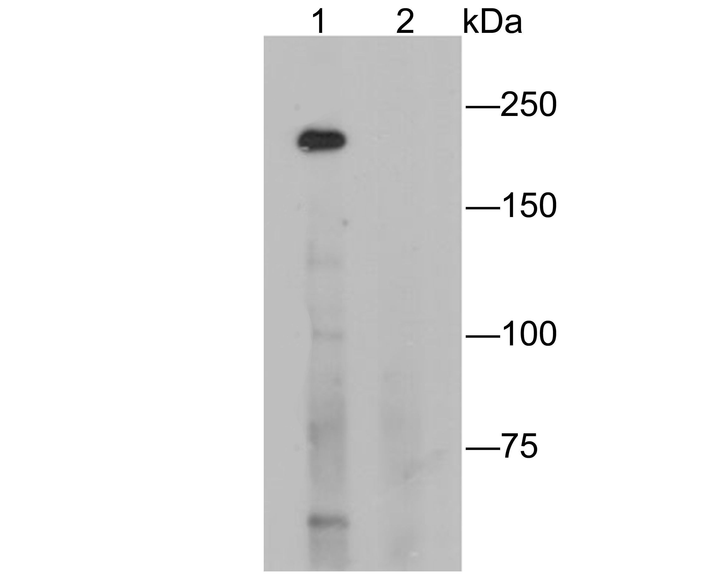 Western blot analysis of CD35 on K562 cell lysates. Proteins were transferred to a PVDF membrane and blocked with 5% BSA in PBS for 1 hour at room temperature. The primary antibody (ER1901-82, 1/500) was used in 5% BSA at room temperature for 2 hours. Goat Anti-Rabbit IgG - HRP Secondary Antibody (HA1001) at 1:5,000 dilution was used for 1 hour at room temperature.<br />  Positive control: <br />  Lane 1: K562 cell lysate<br />  Lane 2: K562 cell lysate, the primary antibody was preincubated with immunization peptide.