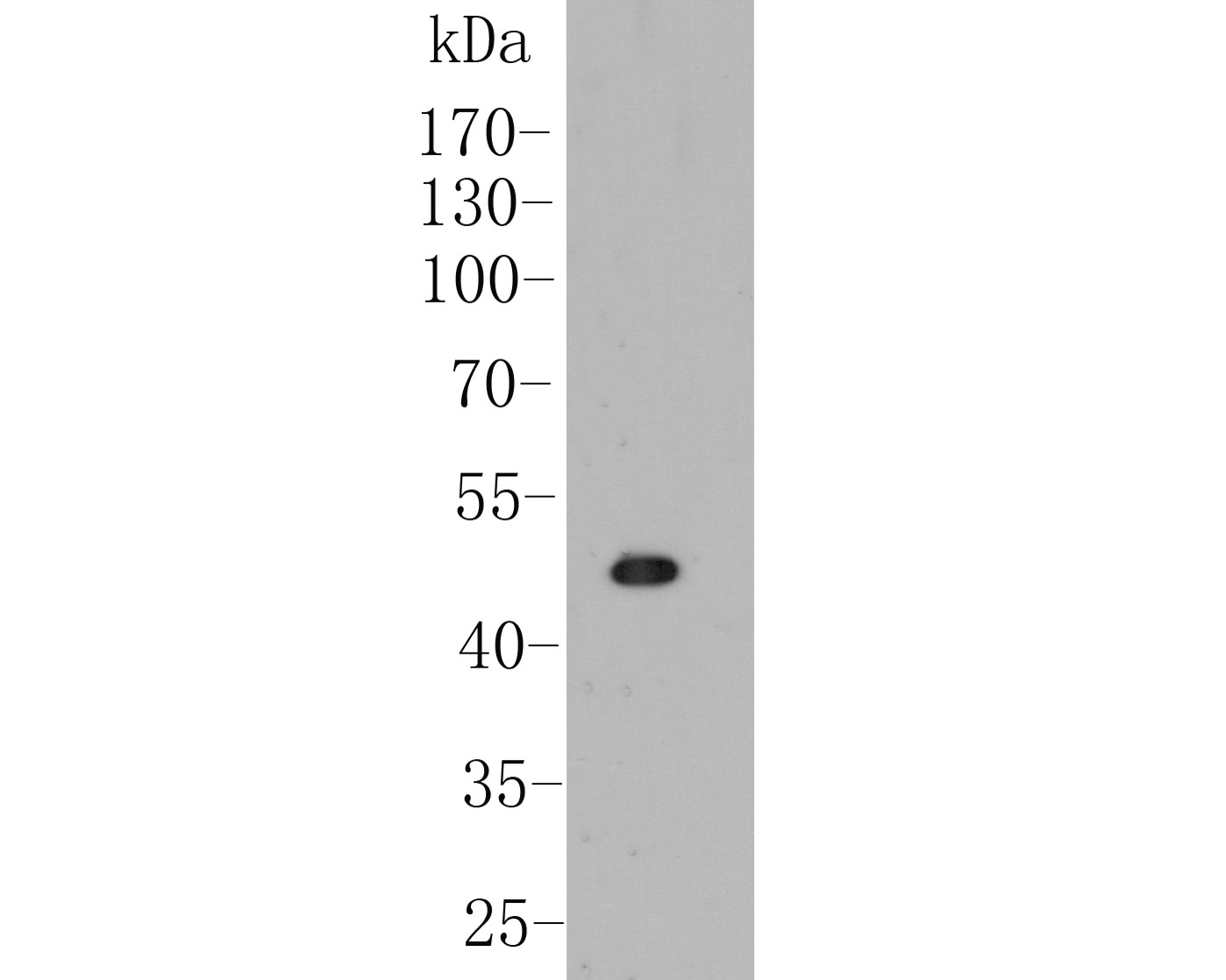 Western blot analysis of B3GAT1 on 293 cell lysate. Proteins were transferred to a PVDF membrane and blocked with 5% BSA in PBS for 1 hour at room temperature. The primary antibody (ER1901-83, 1/1000) was used in 5% BSA at room temperature for 2 hours. Goat Anti-Rabbit IgG - HRP Secondary Antibody (HA1001) at 1:5,000 dilution was used for 1 hour at room temperature.