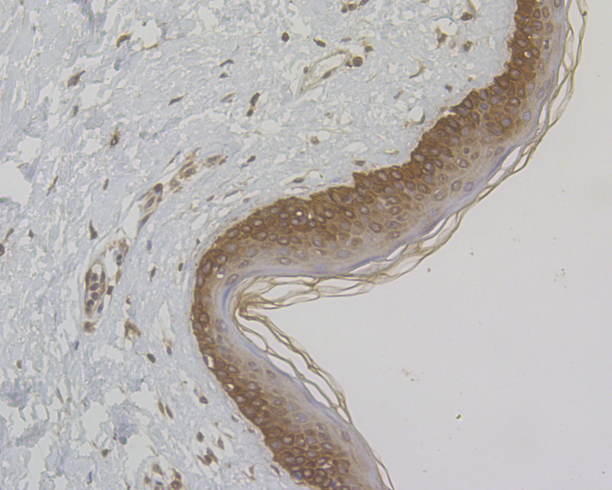 Immunohistochemical analysis of paraffin-embedded human skin tissue using anti-Cytokeratin 5+6 antibody. The section was pre-treated using heat mediated antigen retrieval with sodium citrate buffer (pH 6.0) for 20 minutes. The tissues were blocked in 5% BSA for 30 minutes at room temperature, washed with ddH2O and PBS, and then probed with the antibody (ER1901-86) at 1/50 dilution, for 30 minutes at room temperature and detected using an HRP conjugated compact polymer system. DAB was used as the chromogen. Counter stained with hematoxylin and mounted with DPX.