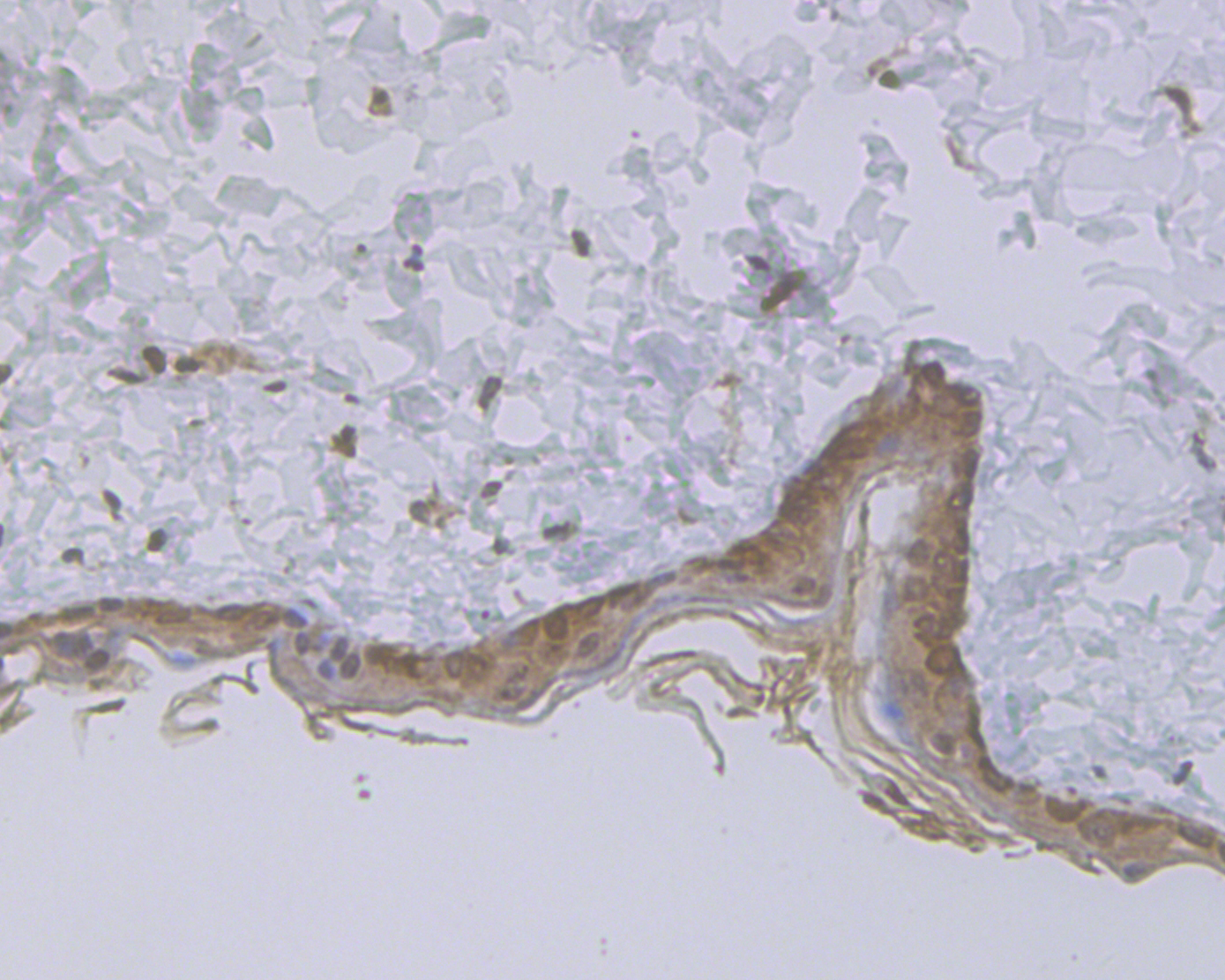 Immunohistochemical analysis of paraffin-embedded rat skin tissue using anti-Cytokeratin 5+6 antibody. The section was pre-treated using heat mediated antigen retrieval with sodium citrate buffer (pH 6.0) for 20 minutes. The tissues were blocked in 5% BSA for 30 minutes at room temperature, washed with ddH2O and PBS, and then probed with the antibody (ER1901-86) at 1/50 dilution, for 30 minutes at room temperature and detected using an HRP conjugated compact polymer system. DAB was used as the chromogen. Counter stained with hematoxylin and mounted with DPX.