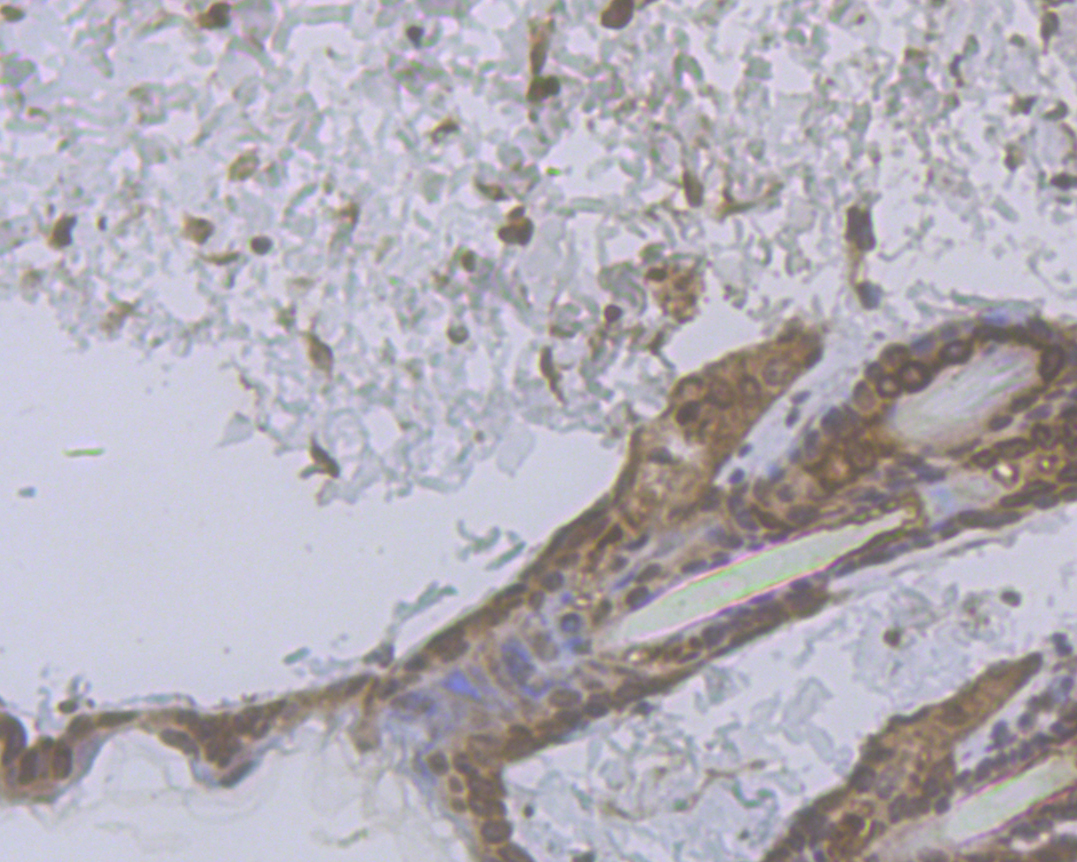 Immunohistochemical analysis of paraffin-embedded mouse skin tissue using anti-Cytokeratin 5+6 antibody. The section was pre-treated using heat mediated antigen retrieval with sodium citrate buffer (pH 6.0) for 20 minutes. The tissues were blocked in 5% BSA for 30 minutes at room temperature, washed with ddH2O and PBS, and then probed with the antibody (ER1901-86) at 1/50 dilution, for 30 minutes at room temperature and detected using an HRP conjugated compact polymer system. DAB was used as the chromogen. Counter stained with hematoxylin and mounted with DPX.