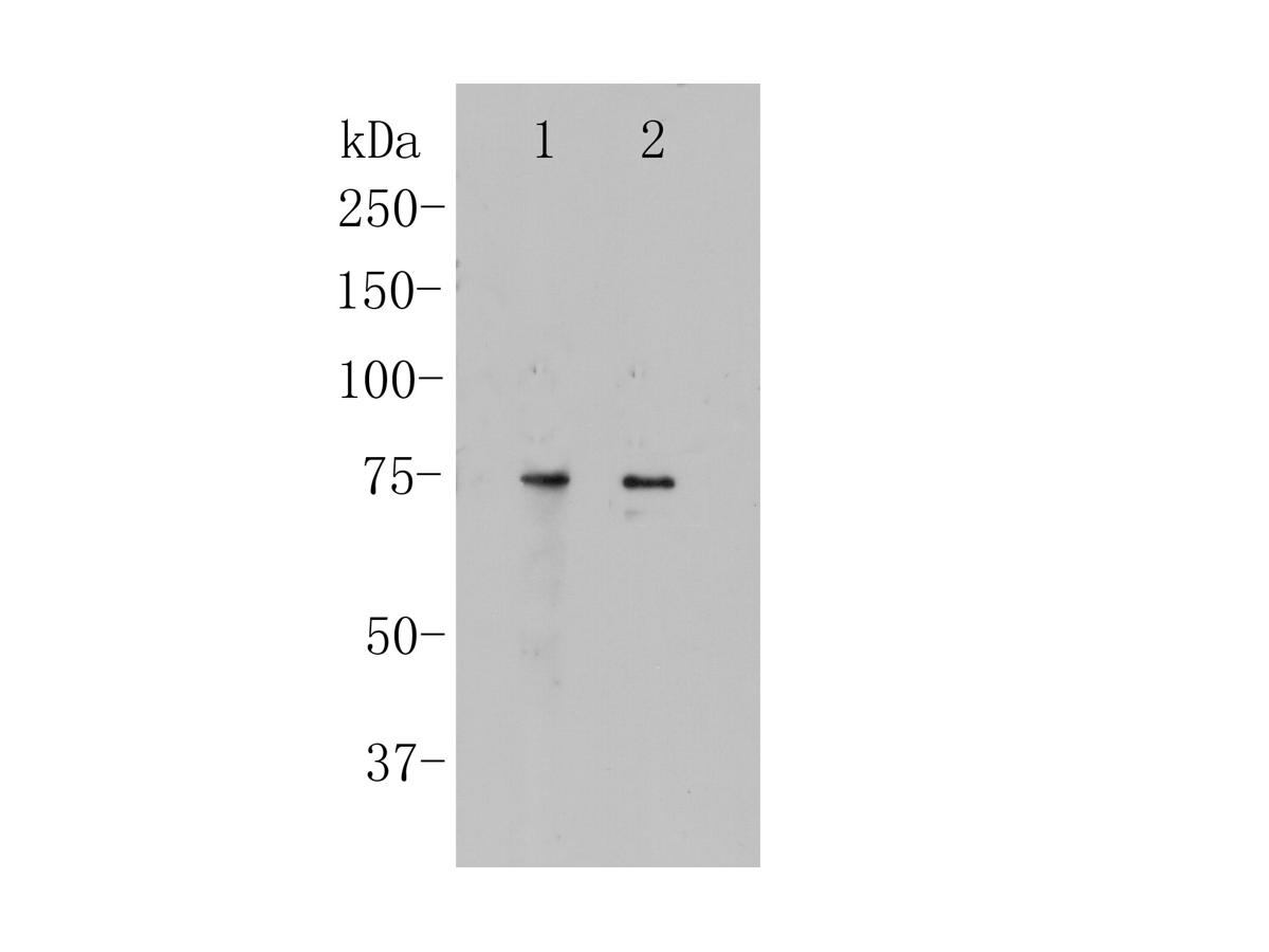 Western blot analysis of CNGA4 on different lysates. Proteins were transferred to a PVDF membrane and blocked with 5% BSA in PBS for 1 hour at room temperature. The primary antibody (ER1901-88, 1/500) was used in 5% BSA at room temperature for 2 hours. Goat Anti-Rabbit IgG - HRP Secondary Antibody (HA1001) at 1:5,000 dilution was used for 1 hour at room temperature.<br /> Positive control: <br /> Lane 1: Human brain tissue lysate<br /> Lane 2: SHSY5Y cell lysate