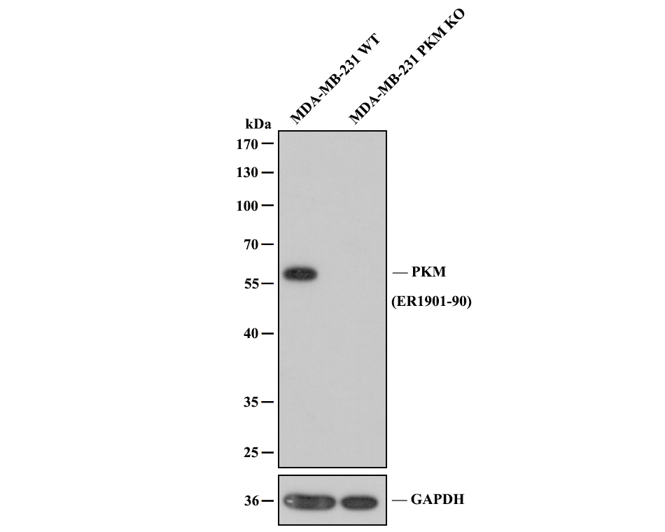 Western blot analysis of PKM on different lysates. Proteins were transferred to a PVDF membrane and blocked with 5% BSA in PBS for 1 hour at room temperature. The primary antibody (ER1901-90, 1/500) was used in 5% BSA at room temperature for 2 hours. Goat Anti-Rabbit IgG - HRP Secondary Antibody (HA1001) at 1:5,000 dilution was used for 1 hour at room temperature.<br /> Positive control: <br /> Lane 1: SiHa cell lysate<br /> Lane 2: A549 cell lysate<br /> Lane 3: PC-3M cell lysate