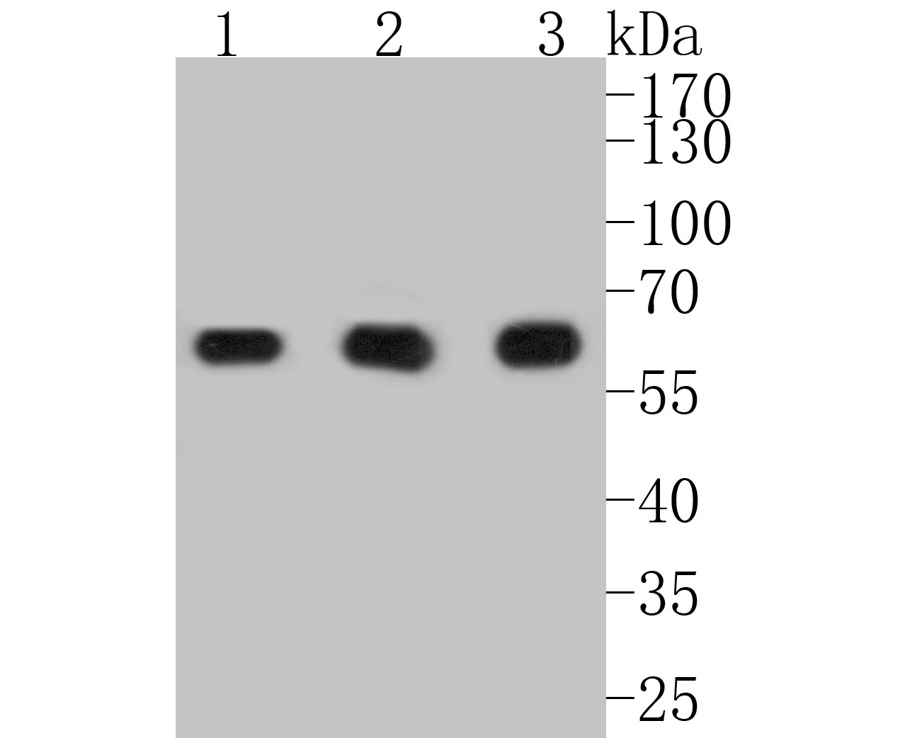 All lanes: Western blot analysis of PKM with anti-PKM antibody (ER1901-90) at 1:500 dilution.<br /> Lane 1: Wild-type MDA-MB-231 whole cell lysate.<br /> Lane 2: PKM knockout MDA-MB-231 whole cell lysate.<br /> <br /> ER1901-90 was shown to specifically react with PKM in wild-type MDA-MB-231 cells. No band was observed when PKM knockout samples were tested. Wild-type and PKM knockout samples were subjected to SDS-PAGE. Proteins were transferred to a PVDF membrane and blocked with 5% NFDM in TBST for 1 hour at room temperature. The primary Anti-PKM antibody (ER1901-90, 1/500) and  Anti-GAPDH antibody (ET1601-4, 1/10000) were used in 5% BSA at room temperature for 2 hours. Goat Anti-Rabbit IgG H&L (HRP) Secondary Antibody (HA1001) at 1:200,000 dilution was used for 1 hour at room temperature.