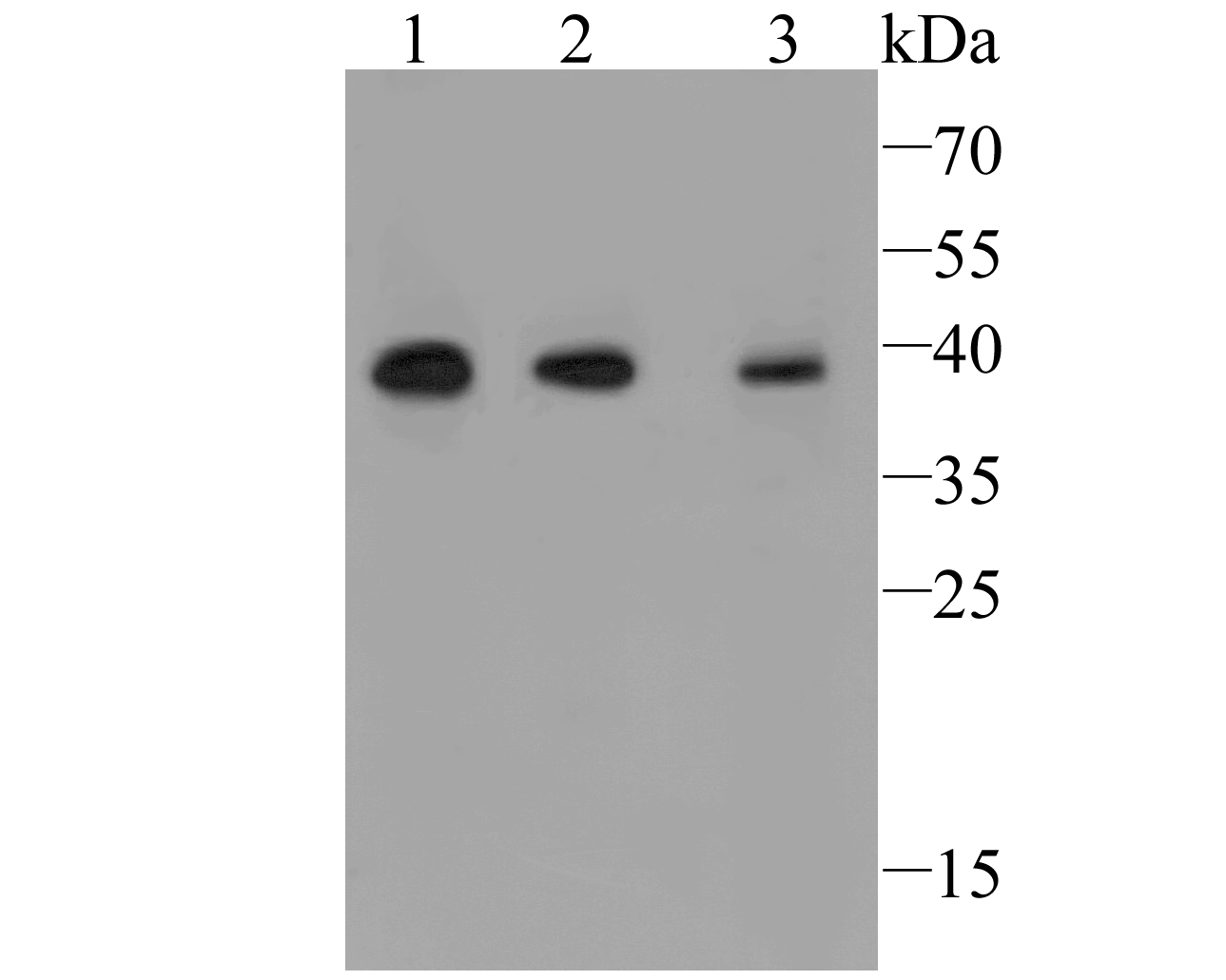Western blot analysis of TMEM163 on different lysate. Proteins were transferred to a PVDF membrane and blocked with 5% BSA in PBS for 1 hour at room temperature. The primary antibody (ER1901-91, 1/1000) was used in 5% BSA at room temperature for 2 hours. Goat Anti-Rabbit IgG - HRP Secondary Antibody (HA1001) at 1:5,000 dilution was used for 1 hour at room temperature.<br /> Positive control: <br /> Lane 1: Human skin tissue lysate<br /> Lane 2: Human small intestine tissue lysate<br /> Lane 3: Human mouse colon tissue lysate<br /> <br /> Predicted band size: 31 kDa<br /> Observed band size: 38 kDa