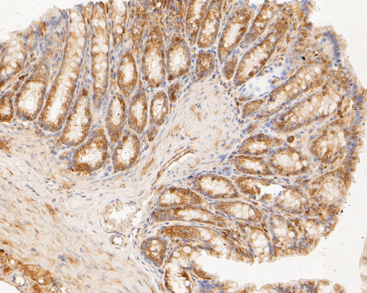Immunohistochemical analysis of paraffin-embedded rat large intestine tissue using anti-TMEM163 antibody. The section was pre-treated using heat mediated antigen retrieval with Tris-EDTA buffer (pH 8.0-8.4) for 20 minutes.The tissues were blocked in 5% BSA for 30 minutes at room temperature, washed with ddH2O and PBS, and then probed with the primary antibody (ER1901-91, 1/50) for 30 minutes at room temperature. The detection was performed using an HRP conjugated compact polymer system. DAB was used as the chromogen. Tissues were counterstained with hematoxylin and mounted with DPX.