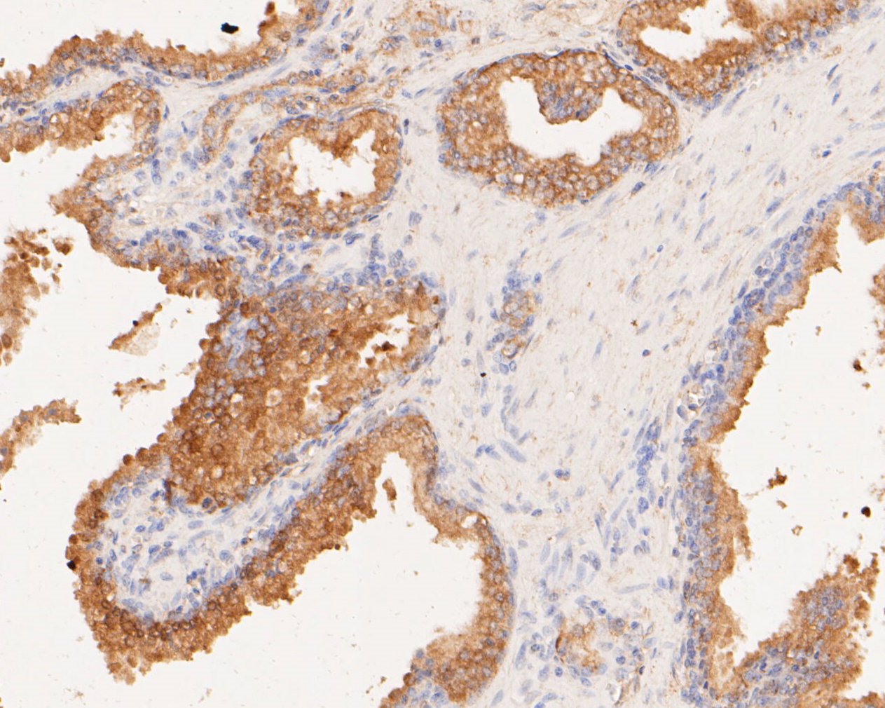 Immunohistochemical analysis of paraffin-embedded human prostate carcinoma tissue using anti-TMEM163 antibody. The section was pre-treated using heat mediated antigen retrieval with Tris-EDTA buffer (pH 8.0-8.4) for 20 minutes.The tissues were blocked in 5% BSA for 30 minutes at room temperature, washed with ddH2O and PBS, and then probed with the primary antibody (ER1901-91, 1/50) for 30 minutes at room temperature. The detection was performed using an HRP conjugated compact polymer system. DAB was used as the chromogen. Tissues were counterstained with hematoxylin and mounted with DPX.