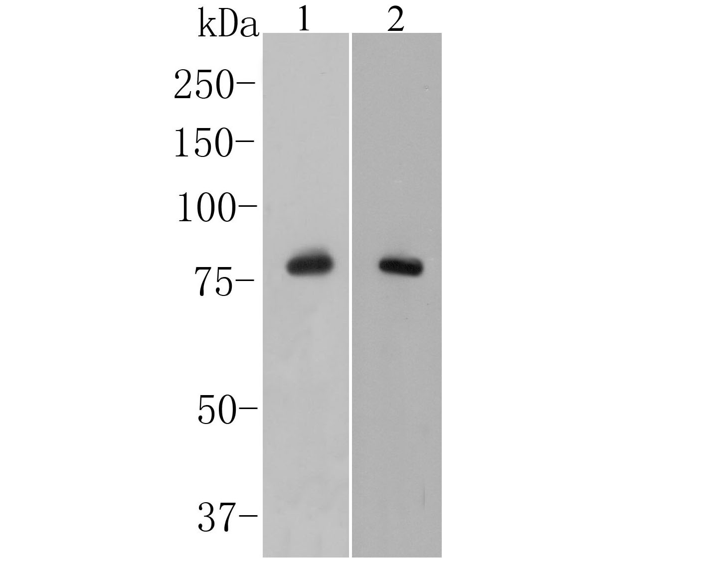 Western blot analysis of delta 1 Catenin/CAS on mouse stomach tissue lysate. Proteins were transferred to a PVDF membrane and blocked with 5% BSA in PBS for 1 hour at room temperature. The primary antibody (ER1901-92, 1/500) was used in 5% BSA at room temperature for 2 hours. Goat Anti-Rabbit IgG - HRP Secondary Antibody (HA1001) at 1:5,000 dilution was used for 1 hour at room temperature.