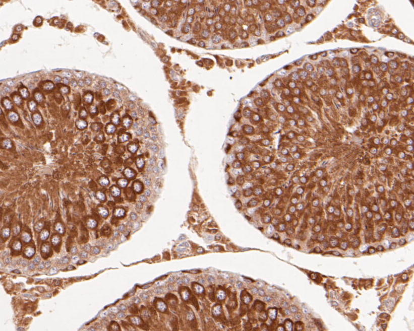Immunohistochemical analysis of paraffin-embedded rat testis tissue using anti-delta 1 Catenin/CAS antibody. The section was pre-treated using heat mediated antigen retrieval with Tris-EDTA buffer (pH 8.0-8.4) for 20 minutes.The tissues were blocked in 5% BSA for 30 minutes at room temperature, washed with ddH2O and PBS, and then probed with the primary antibody (ER1901-92, 1/100) for 30 minutes at room temperature. The detection was performed using an HRP conjugated compact polymer system. DAB was used as the chromogen. Tissues were counterstained with hematoxylin and mounted with DPX.