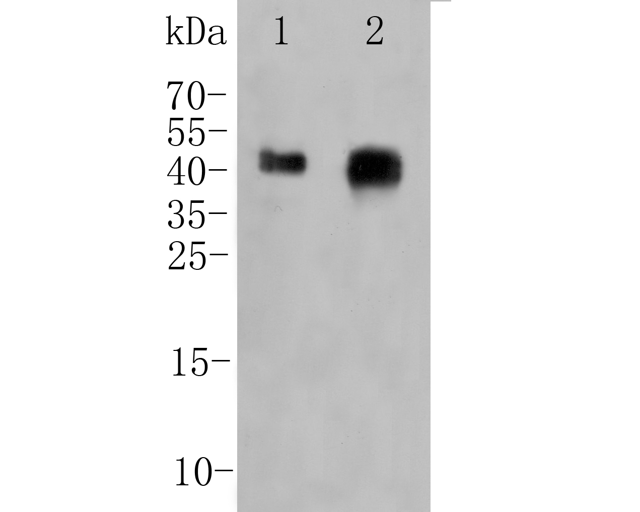 Western blot analysis of FOLR1 on different lysates. Proteins were transferred to a PVDF membrane and blocked with 5% BSA in PBS for 1 hour at room temperature. The primary antibody (ER1901-95, 1/500) was used in 5% BSA at room temperature for 2 hours. Goat Anti-Rabbit IgG - HRP Secondary Antibody (HA1001) at 1:5,000 dilution was used for 1 hour at room temperature.<br /> Positive control: <br /> Lane 1: SKBR3 cell lysate<br /> Lane 2: human placenta tissue lysate