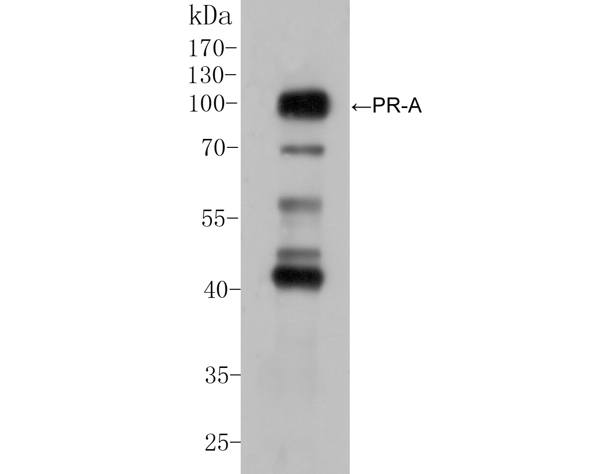 Western blot analysis of Progesterone receptor on AN3CA cell lysate. Proteins were transferred to a PVDF membrane and blocked with 5% BSA in PBS for 1 hour at room temperature. The primary antibody (ER1901-96, 1/100) was used in 5% BSA at room temperature for 2 hours. Goat Anti-Rabbit IgG - HRP Secondary Antibody (HA1001) at 1:5,000 dilution was used for 1 hour at room temperature.