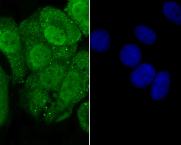ICC staining of Progesterone receptor in MCF-7 cells (green). Formalin fixed cells were permeabilized with 0.1% Triton X-100 in TBS for 10 minutes at room temperature and blocked with 1% Blocker BSA for 15 minutes at room temperature. Cells were probed with the primary antibody (ER1901-96, 1/100) for 1 hour at room temperature, washed with PBS. Alexa Fluor®488 Goat anti-Rabbit IgG was used as the secondary antibody at 1/100 dilution. The nuclear counter stain is DAPI (blue).