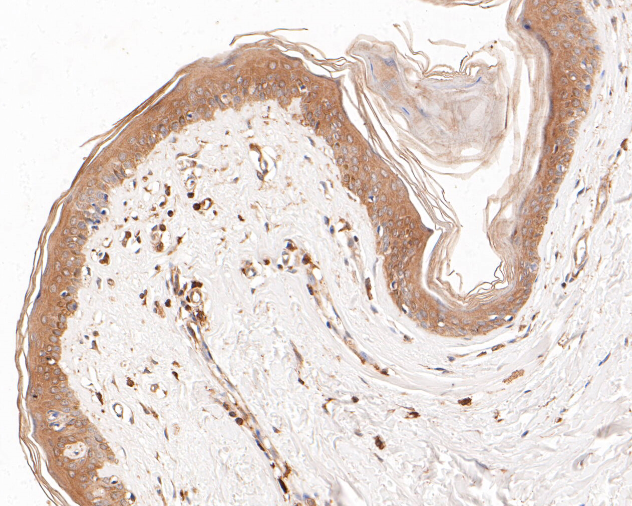Immunohistochemical analysis of paraffin-embedded human skin tissue using anti-Cytokeratin 20 antibody. The section was pre-treated using heat mediated antigen retrieval with Tris-EDTA buffer (pH 8.0-8.4) for 20 minutes.The tissues were blocked in 5% BSA for 30 minutes at room temperature, washed with ddH2O and PBS, and then probed with the primary antibody (ER1901-97, 1/200) for 30 minutes at room temperature. The detection was performed using an HRP conjugated compact polymer system. DAB was used as the chromogen. Tissues were counterstained with hematoxylin and mounted with DPX.