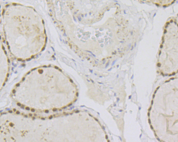 Immunohistochemical analysis of paraffin-embedded  human thyroid gland tissue anti-Pax8 antibody. The section was pre-treated using heat mediated antigen retrieval with sodium citrate buffer (pH 6.0) for 20 minutes. The tissues were blocked in 5% BSA for 30 minutes at room temperature, washed with ddH2O and PBS, and then probed with the primary antibody (ER1901-98, 1/100)  for 30 minutes at room temperature. The detection was performed using an HRP conjugated compact polymer system. DAB was used as the chromogen. Tissues were counterstained with hematoxylin and mounted with DPX.