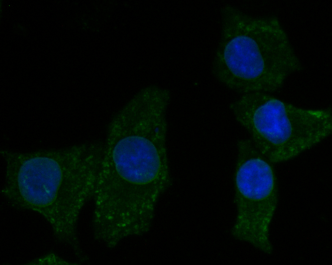 ICC staining of KCNMA1 in A549 cells (green). Formalin fixed cells were permeabilized with 0.1% Triton X-100 in TBS for 10 minutes at room temperature and blocked with 1% Blocker BSA for 15 minutes at room temperature. Cells were probed with the primary antibody (ER1902-05, 1/50) for 1 hour at room temperature, washed with PBS. Alexa Fluor®488 Goat anti-Rabbit IgG was used as the secondary antibody at 1/1,000 dilution. The nuclear counter stain is DAPI (blue).