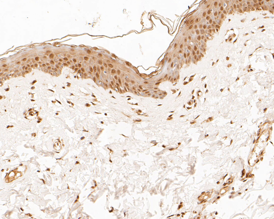 Immunohistochemical analysis of paraffin-embedded human skin tissue using anti-Muc1 antibody. The section was pre-treated using heat mediated antigen retrieval with sodium citrate buffer (pH 6.0) for 20 minutes. The tissues were blocked in 5% BSA for 30 minutes at room temperature, washed with ddH2O and PBS, and then probed with the primary antibody (ER1902-10, 1/200) for 30 minutes at room temperature. The detection was performed using an HRP conjugated compact polymer system. DAB was used as the chromogen. Tissues were counterstained with hematoxylin and mounted with DPX.