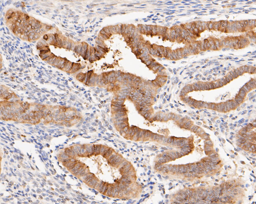 Immunohistochemical analysis of paraffin-embedded human uterus tissue using anti-Muc1 antibody. The section was pre-treated using heat mediated antigen retrieval with sodium citrate buffer (pH 6.0) for 20 minutes. The tissues were blocked in 5% BSA for 30 minutes at room temperature, washed with ddH2O and PBS, and then probed with the primary antibody (ER1902-10, 1/200) for 30 minutes at room temperature. The detection was performed using an HRP conjugated compact polymer system. DAB was used as the chromogen. Tissues were counterstained with hematoxylin and mounted with DPX.