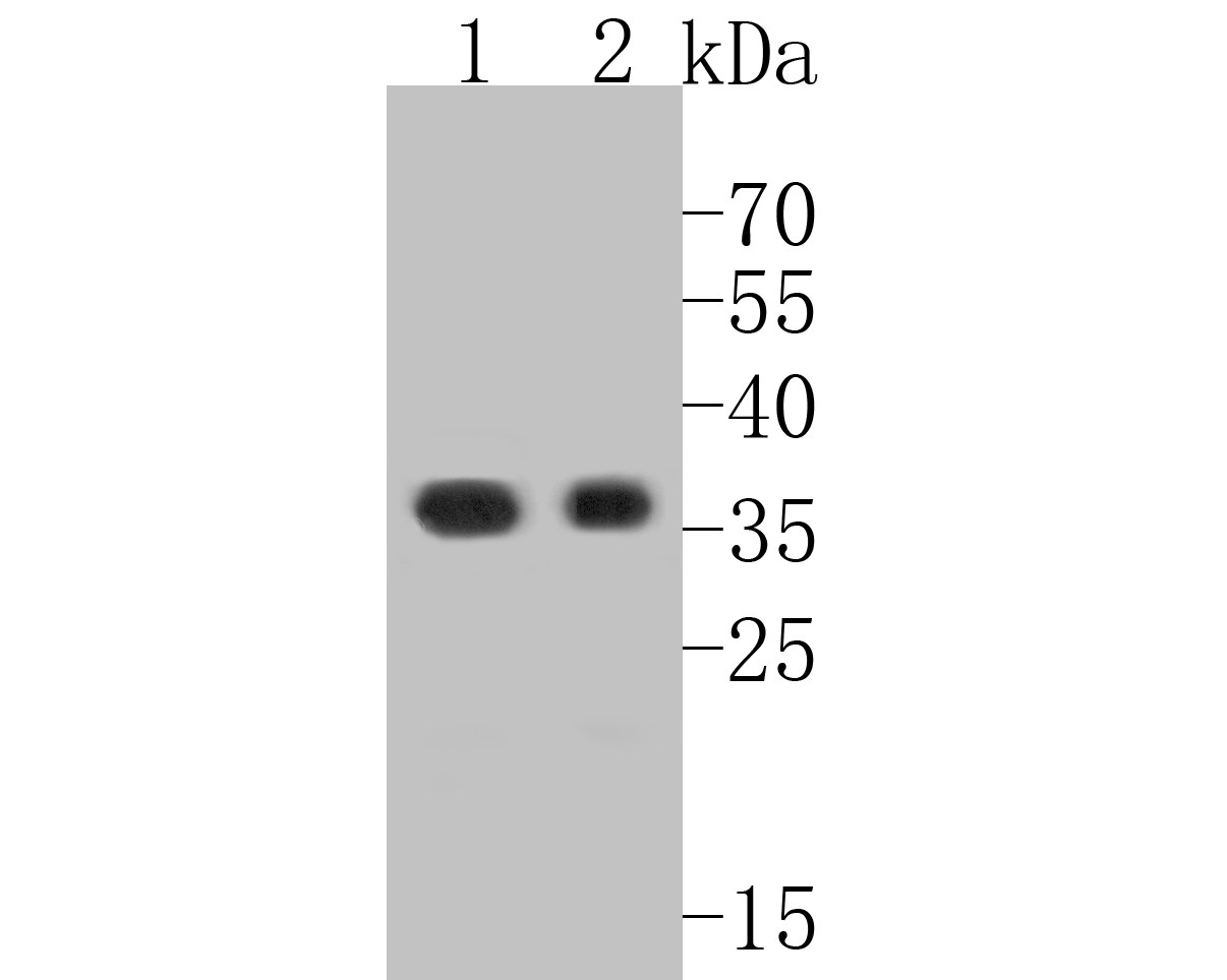 Western blot analysis of Claudin 18.1 on different lysates. Proteins were transferred to a PVDF membrane and blocked with 5% BSA in PBS for 1 hour at room temperature. The primary antibody (ER1902-11, 1/500) was used in 5% BSA at room temperature for 2 hours. Goat Anti-Rabbit IgG - HRP Secondary Antibody (HA1001) at 1:5,000 dilution was used for 1 hour at room temperature.<br />  Positive control: <br />  Lane 1: human stomach tissue lysate<br />  Lane 2: AGS cell lysate