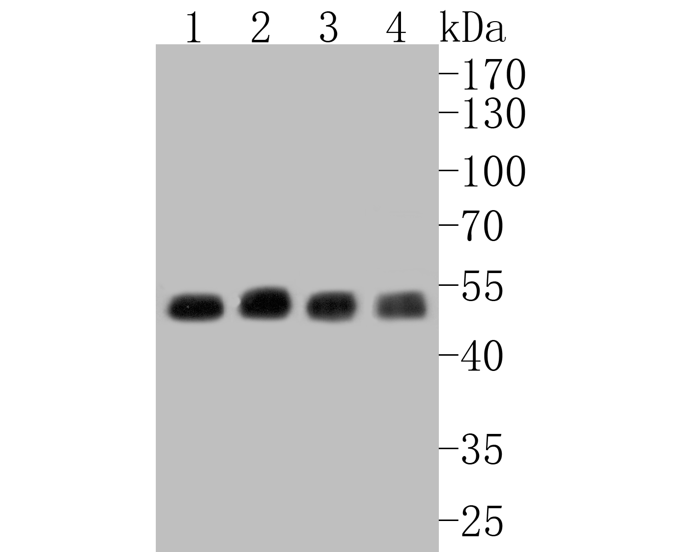 Western blot analysis of CHRNA3 on different lysates. Proteins were transferred to a PVDF membrane and blocked with 5% BSA in PBS for 1 hour at room temperature. The primary antibody (ER1902-13, 1/500) was used in 5% BSA at room temperature for 2 hours. Goat Anti-Rabbit IgG - HRP Secondary Antibody (HA1001) at 1:5,000 dilution was used for 1 hour at room temperature.<br /> Positive control: <br /> Lane 1: SH-SY5Y cell lysate<br /> Lane 2: Hela cell lysate<br /> Lane 3: human stomach tissue lysate<br /> Lane 4: rat brain tissue lysate