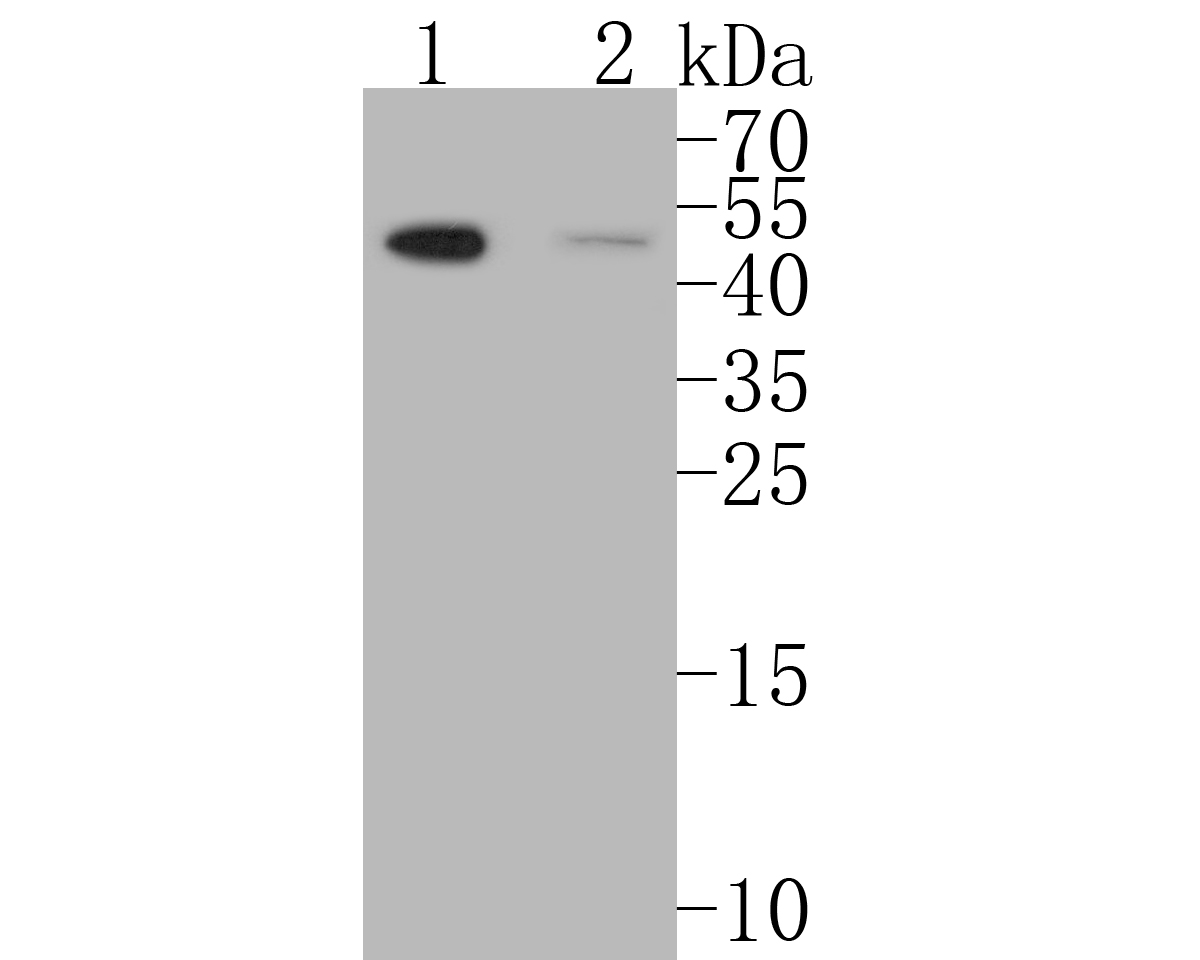 Western blot analysis of MDM2 on different lysates. Proteins were transferred to a PVDF membrane and blocked with 5% BSA in PBS for 1 hour at room temperature. The primary antibody (ER1902-14, 1/500) was used in 5% BSA at room temperature for 2 hours. Goat Anti-Rabbit IgG - HRP Secondary Antibody (HA1001) at 1:5,000 dilution was used for 1 hour at room temperature.<br />  Positive control: <br />  Lane 1: human lung tissue lysate<br />  Lane 2: Daudi cell lysate