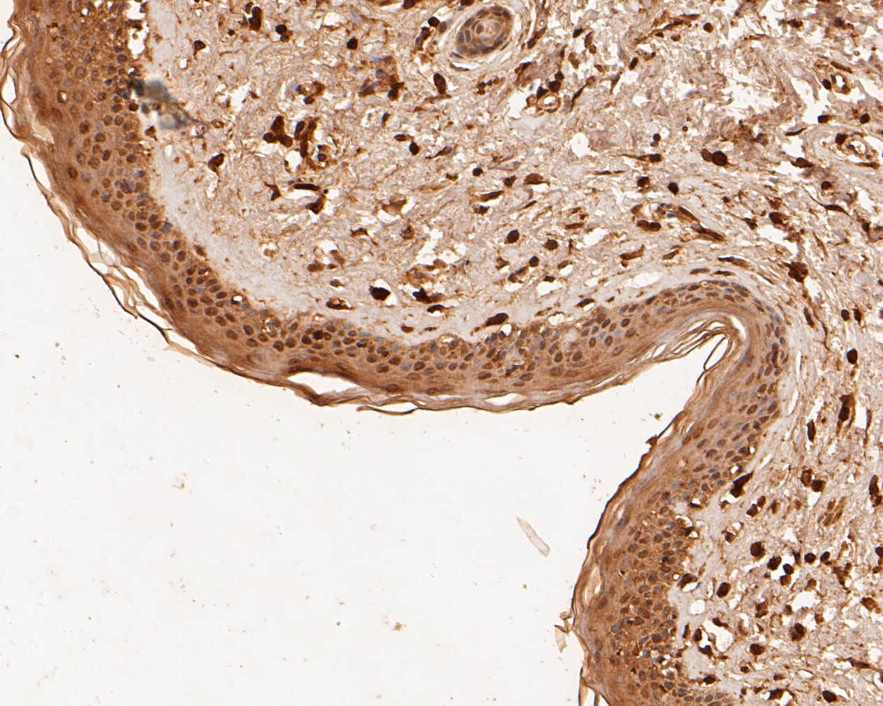 Immunohistochemical analysis of paraffin-embedded human skin tissue using anti-MDM2 antibody. The section was pre-treated using heat mediated antigen retrieval with sodium citrate buffer (pH 6.0) for 20 minutes. The tissues were blocked in 5% BSA for 30 minutes at room temperature, washed with ddH2O and PBS, and then probed with the primary antibody (ER1902-14, 1/500) for 30 minutes at room temperature. The detection was performed using an HRP conjugated compact polymer system. DAB was used as the chromogen. Tissues were counterstained with hematoxylin and mounted with DPX.