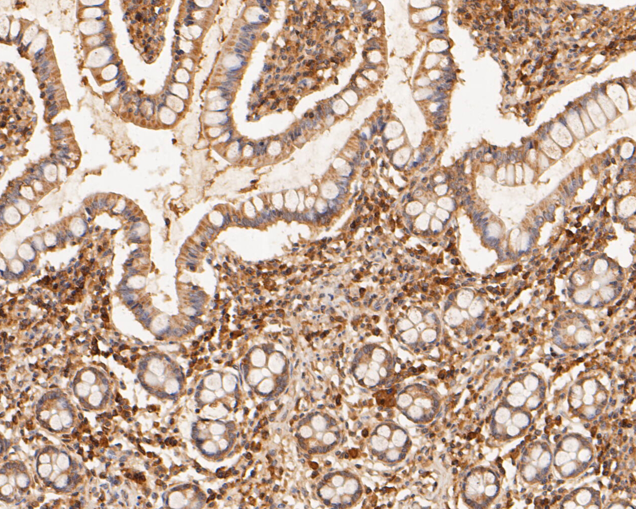 Immunohistochemical analysis of paraffin-embedded human small intestine tissue using anti-MDM2 antibody. The section was pre-treated using heat mediated antigen retrieval with sodium citrate buffer (pH 6.0) for 20 minutes. The tissues were blocked in 5% BSA for 30 minutes at room temperature, washed with ddH2O and PBS, and then probed with the primary antibody (ER1902-14, 1/1,000) for 30 minutes at room temperature. The detection was performed using an HRP conjugated compact polymer system. DAB was used as the chromogen. Tissues were counterstained with hematoxylin and mounted with DPX.