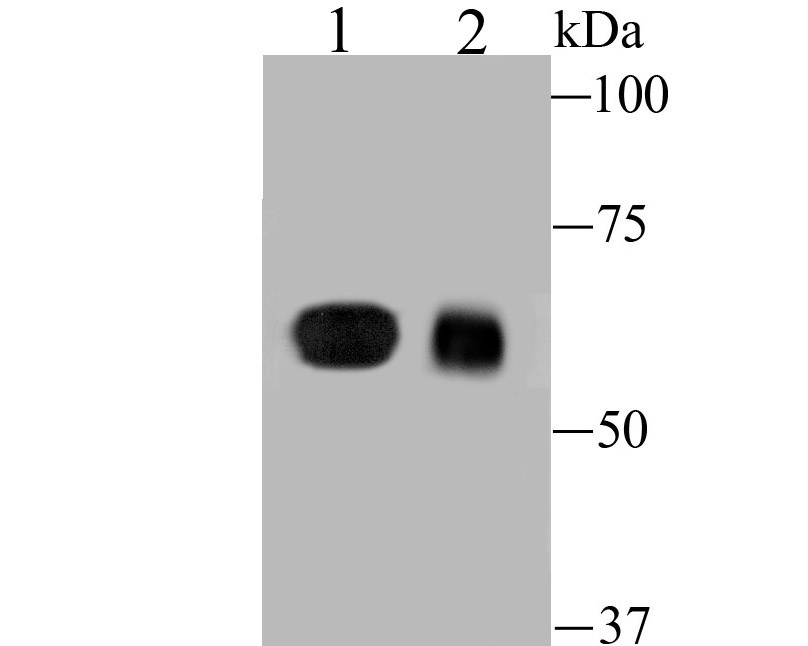 Western blot analysis of DLL4 on different lysates. Proteins were transferred to a PVDF membrane and blocked with 5% BSA in PBS for 1 hour at room temperature. The primary antibody (ER1902-20, 1/500) was used in 5% BSA at room temperature for 2 hours. Goat Anti-Rabbit IgG - HRP Secondary Antibody (HA1001) at 1:5,000 dilution was used for 1 hour at room temperature.<br /> Positive control: <br /> Lane 1: 293 cell lysate<br /> Lane 2: Mouse placenta tissue lysate